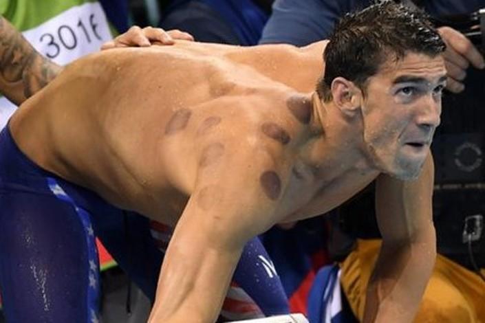 آثار الحجامة على أجساد الامريكيين في أولمبياد ريو Rio Olympics (2)