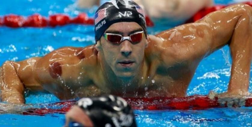 """آثار الحجامة على أجساد الامريكيين في أولمبياد """"ريو"""" Rio Olympics"""