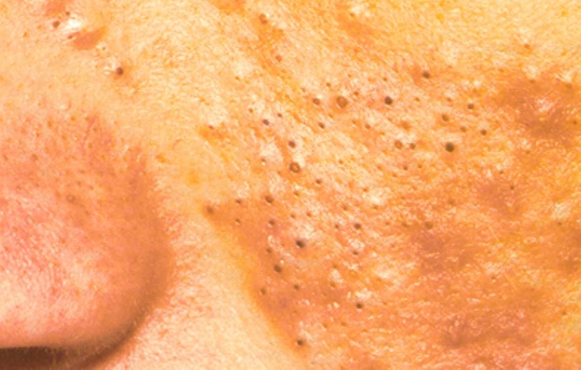 حل لمشكلة الرؤوس السوداء في الوجه والجسم