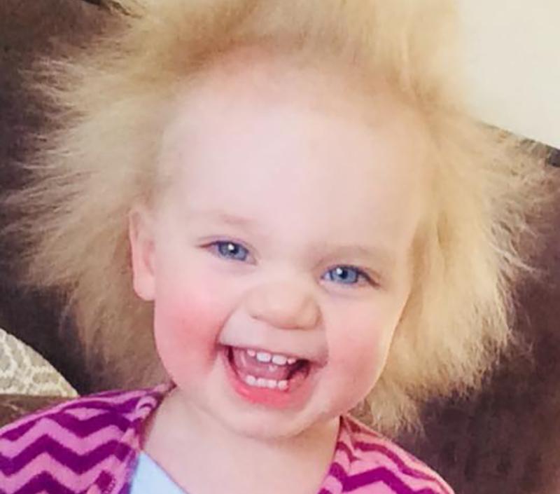 """طفلة تصاب بمتلازمة """"شعر آينشتاين"""""""
