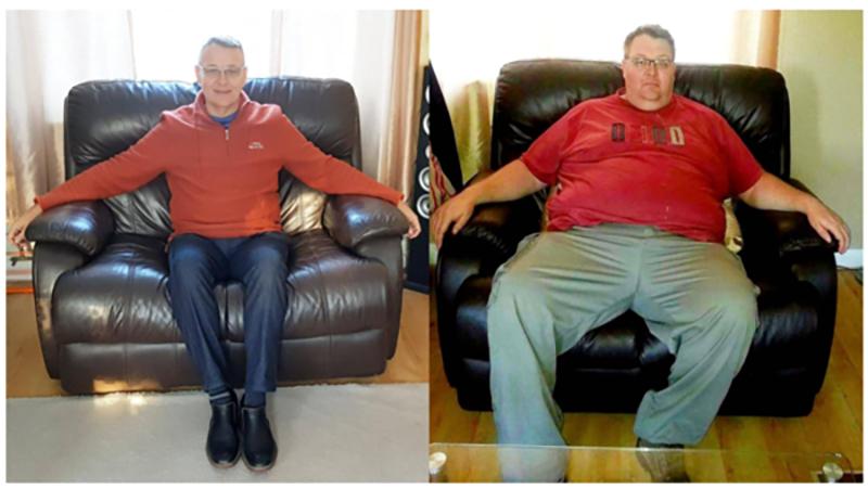 كيف فقد هذا الرجل نصف وزنه بفترة وجيزة؟