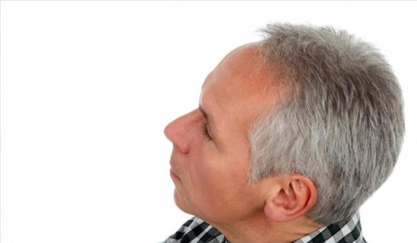 لهذا السبب يتحول الشعر الى اللون الرمادي والأبيض Graying hair