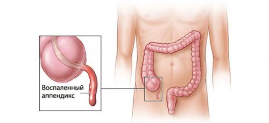 هذا هو الدور المهم لزائدة دودية Appendix