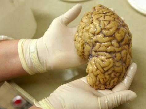الاعداد للبحث خريطة الدماغ البشري